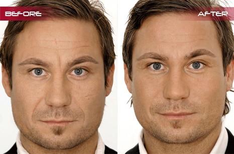 Facial Contour Fillers - Robina - Gold Coast - Rejuven8 Cosmetix