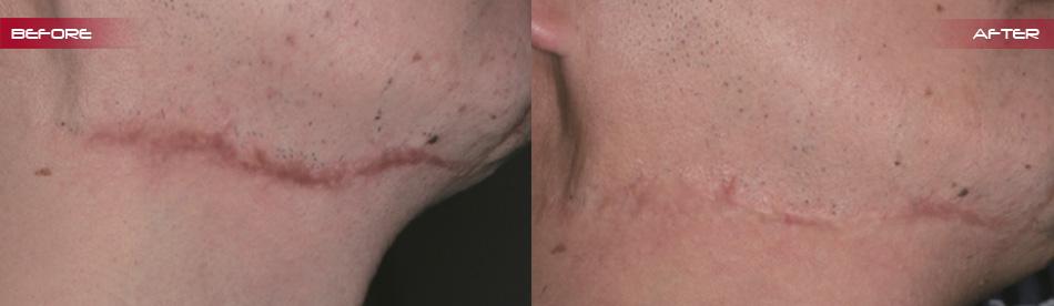 scar-correction-7_03