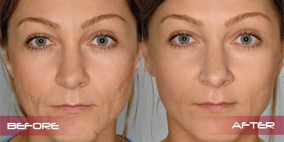 collagen filler injections