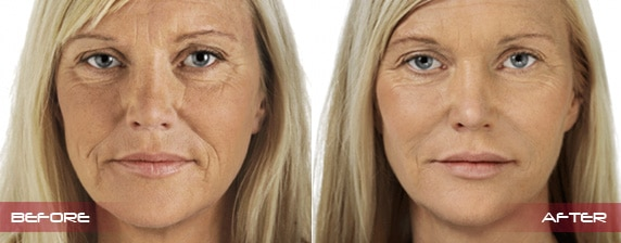 Facial Injections For Wrinkles