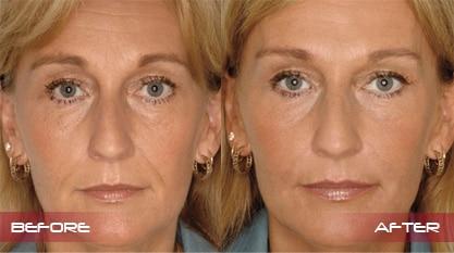 Dermal Fillers - Robina - Gold Coast - Rejuven8 Cosmetix