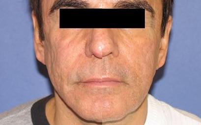 dermapen-skin-needling