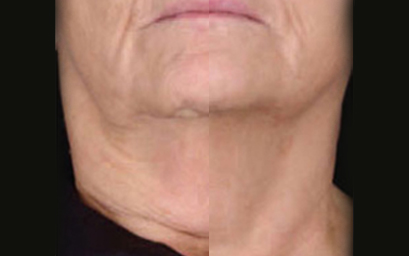 titan-non-surgical-face-and-neck-lift