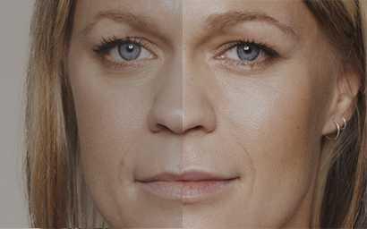 facial-contour-fillers