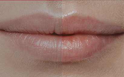 lip-rejuvenation-and-enhancement