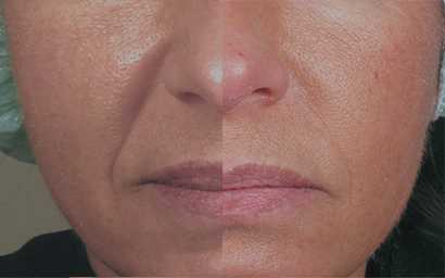 long-lasting-dermal-fillers
