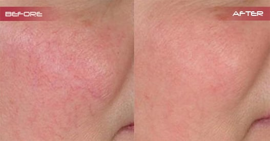 Intense Pulsed Light (IPL) - Gold Coast - Rejuven8 Cosmetix