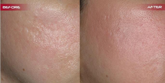 Scar Correction Robina Gold Coast Rejuven8 Cosmetix